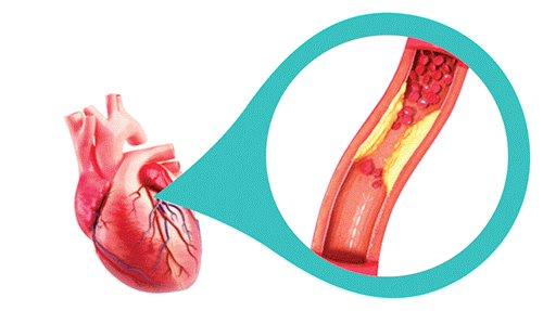 Hình ảnh mạch vành bị thu hẹp bởi các mảng xơ vữa